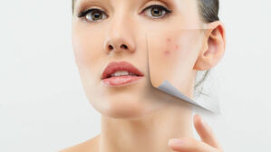 Acne And Scar Treatment   Riva Clinic Updates